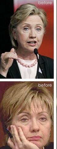 hillary-clinton_plastic_surgery.jpg